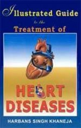 Illustrated Guide to the Treatment of Heart Diseases