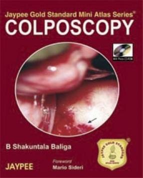 Jaypee Gold Standard Mini Atlas Series Colposcopy