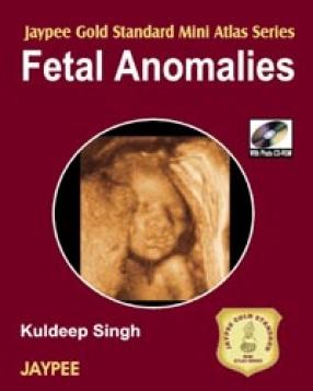 Jaypee Gold Standard Mini Atlas Series Fetal Anomalies with Photo