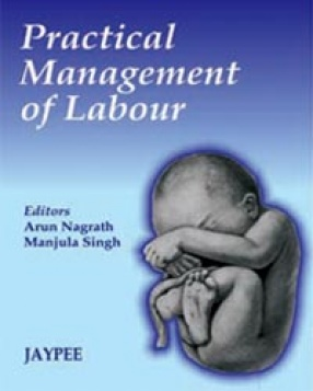 Practical Management of Labour