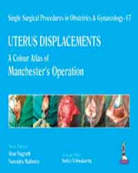Single Surgical Procedures in Obstetrics and Gynaecology–17: A Colour Atlas of Manchester's Operation