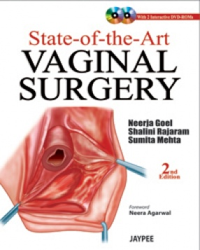 State of the Art Vaginal Surgery
