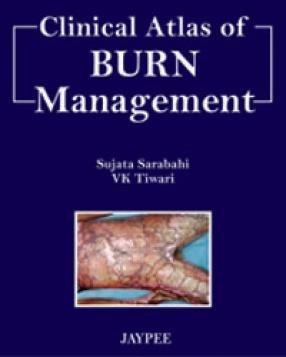 Clinical Atlas of Burn Management