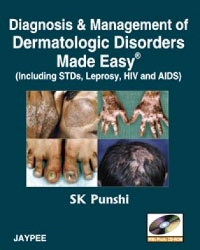 Diagnosis and Management of Dermatologic Disorders Made Easy