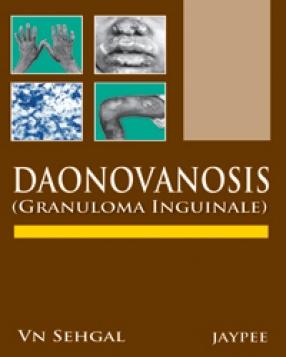 Donovanosis: Granuloma Inguinale