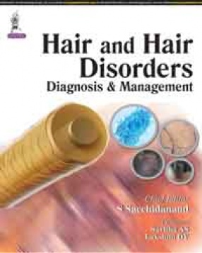 Hair and Hair Disorders Diagnosis and Management