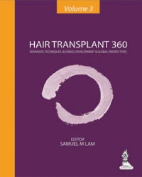 Hair Transplant 360: Advances, Techniques, Business Development, and Global Perspectives, Volume 3