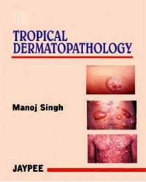 Tropical Dermatopathology
