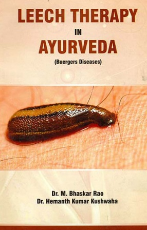 Leech Therapy in Ayurveda: Buergers Diseases