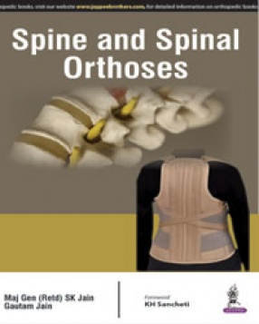 Spine and Spinal Orthoses