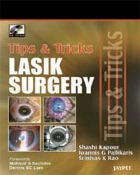 Tips & Tricks in Lasik Surgery
