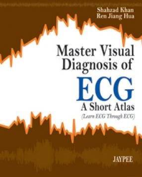 Master Visual Diagnosis of ECG: A Short Atlas (Learn ECG Through ECG)