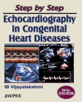 Step by Step Echocardiography in Congenital Heart Diseases