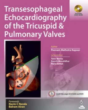 Transesophageal Echocardiography of the Tricuspid and Pulmonary Valves