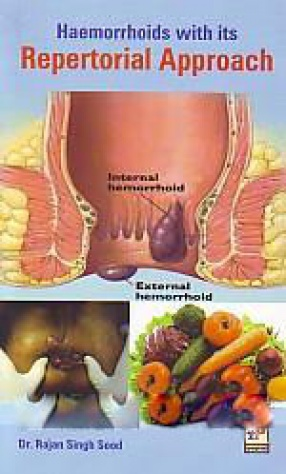 Haemorrhoids With Its Repertorial Approach
