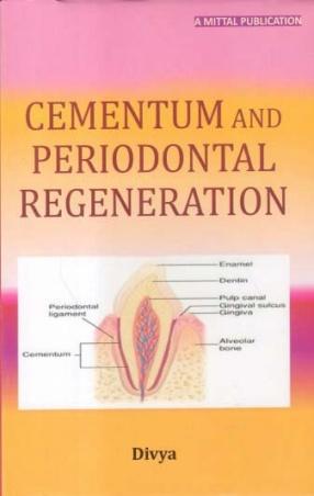 Cementum and Periodontal Regeneration