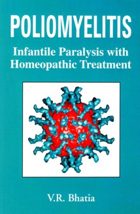 Poliomyelitis Infantile Paralysis With Homeopathic Treatment