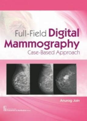Full-Field Digital Mammography Case-Based Approach