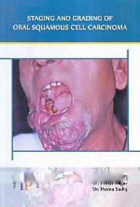 Staging and Grading of Oral Squamous Cell Carcinoma